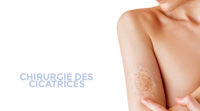 chirurgie cicatrices montpellier