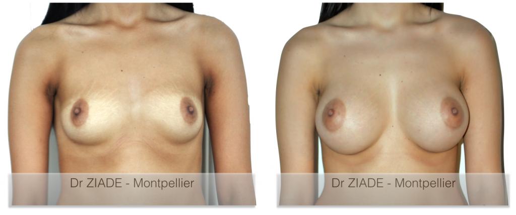 Prothèses mammaires - Dr ZIADE - Chirurgie Esthétique - Montpellier