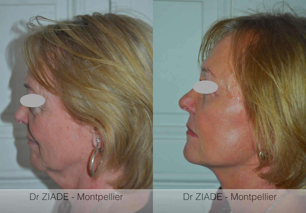 lifting cervico facial montpellier