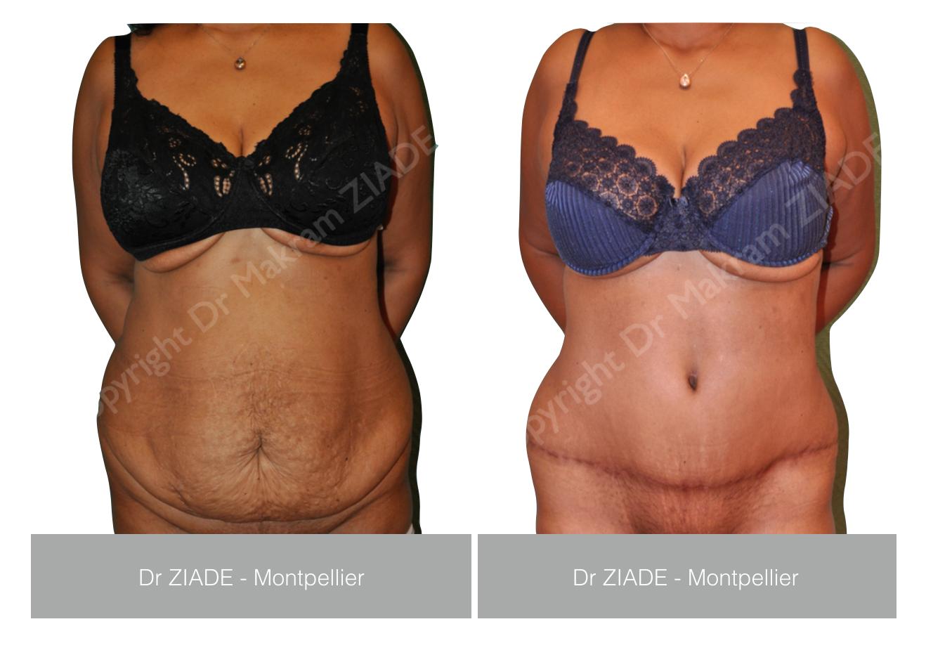 Dr ZIADE - Abdominoplastie Montpellier