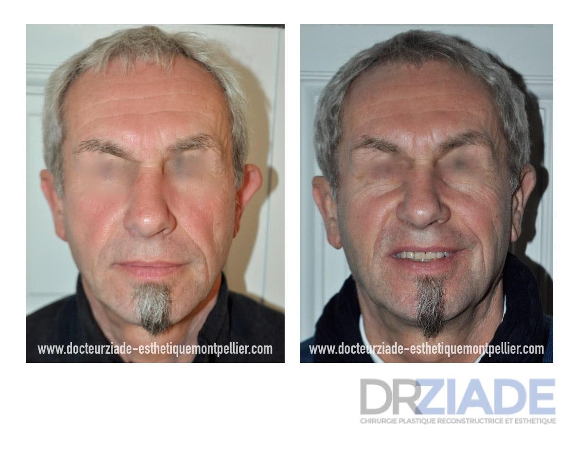 Chirurgie des Oreilles décollées par le Dr Makram ZIADE - Chirurgien esthétique à Montpellier