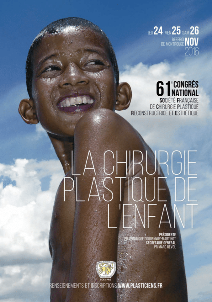 congres national chirurgie plastique