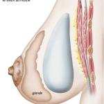 illustration d'une prothèse mammaire prémusculaire par le chirurgien esthétique ZIADE à Montpellier