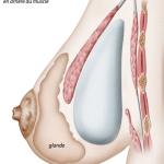 illustration d'une prothèse mammaire rétro musculaire par le docteur ziade à montpellier