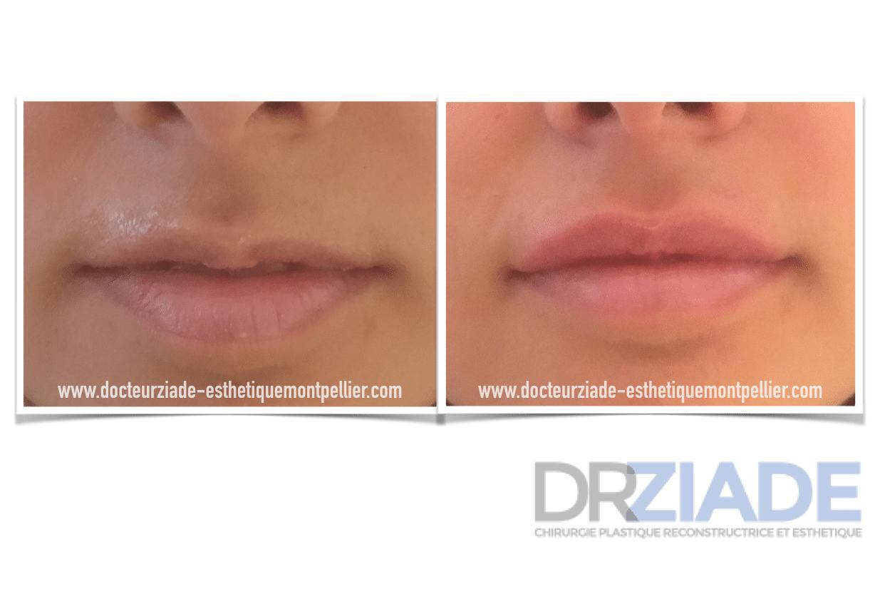 Injection d'Acide Hyaluronique et harmoniser les lèvres