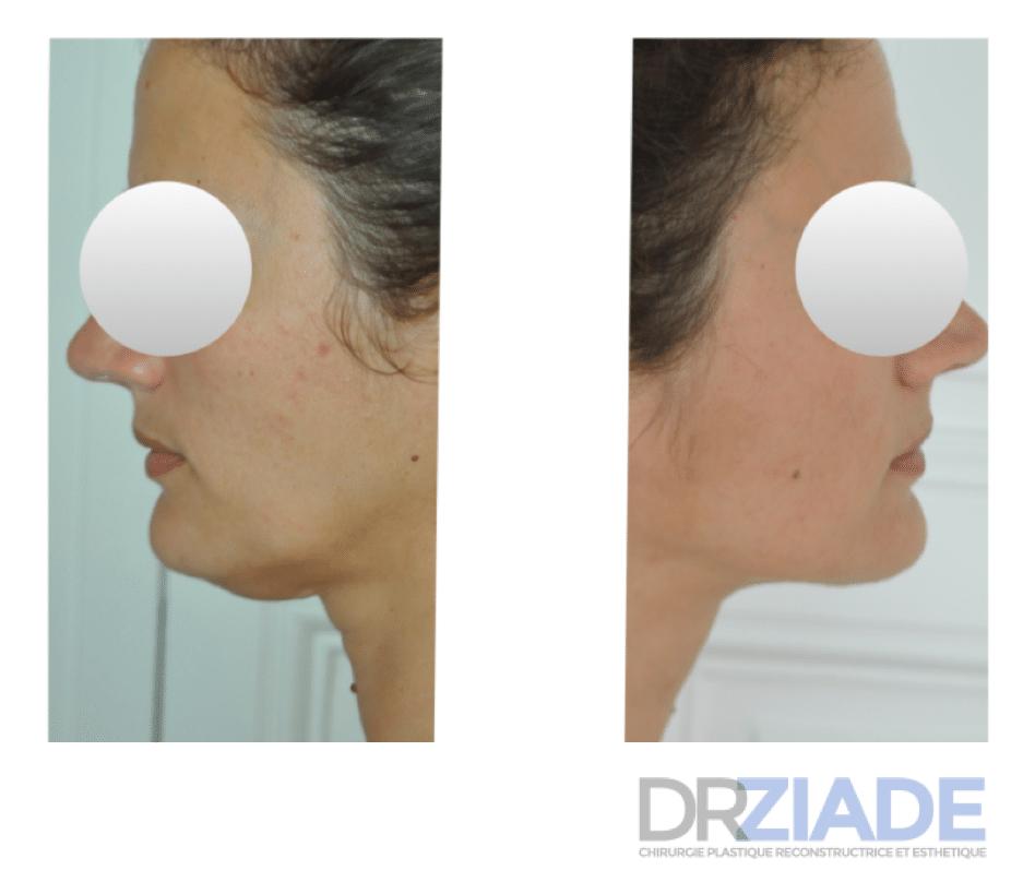 Lipoaspiration du menton par le Docteur ZIADE Chirurgien esthétique à Montpellier