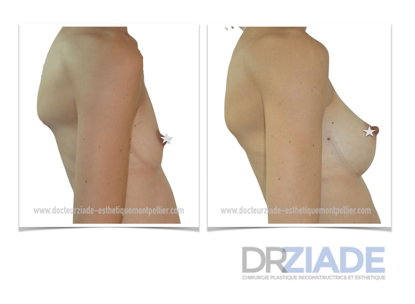 Augmentation mammaire avec un effet naturel Montpellier - Dr ZIADE