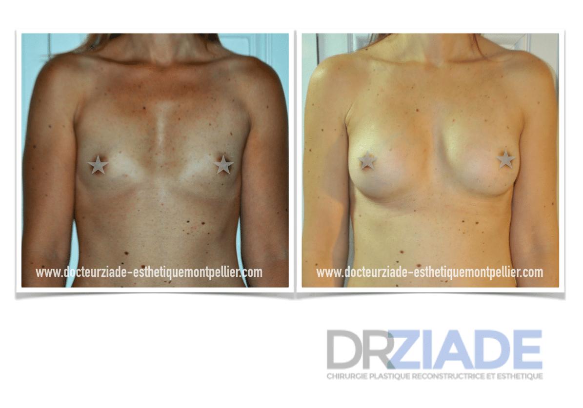 augmentation mammaire par prothèse Dr Ziade