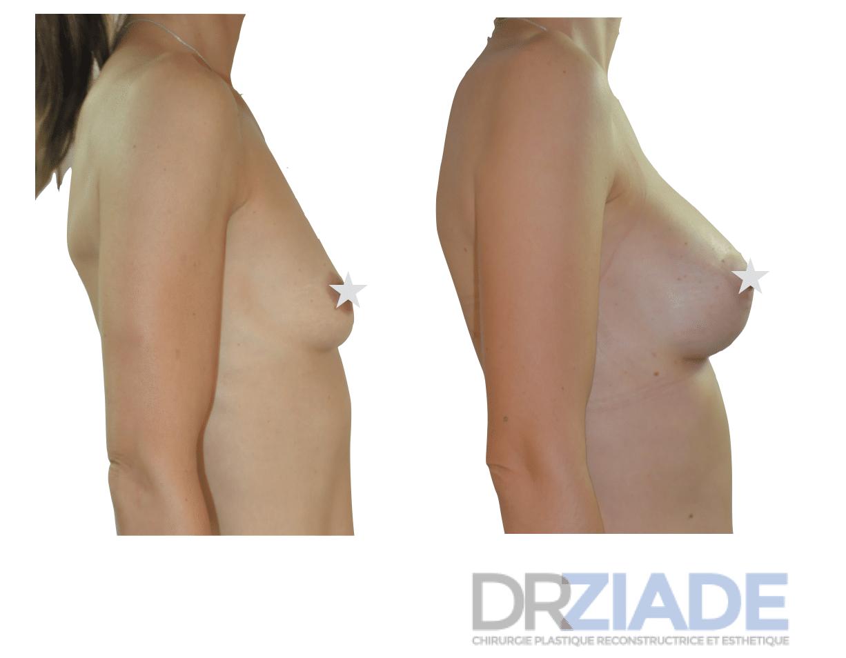 Augmentation mammaire par prothèses anatomiques à Mpontpellier
