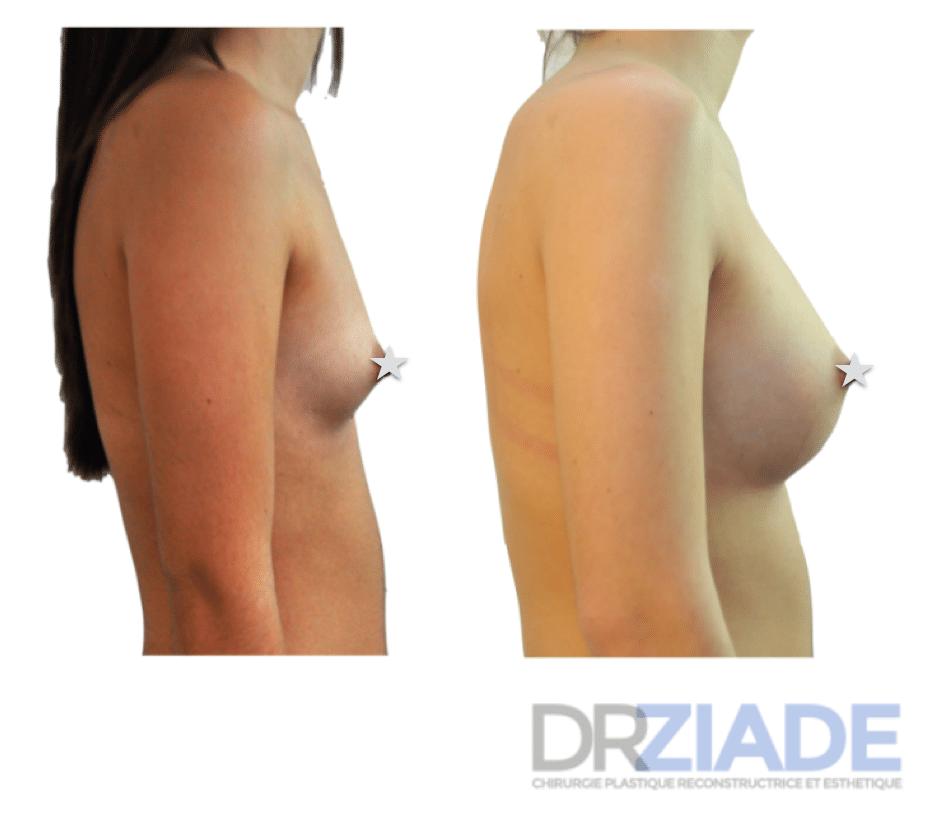 Prothèses mammaire Montpellier