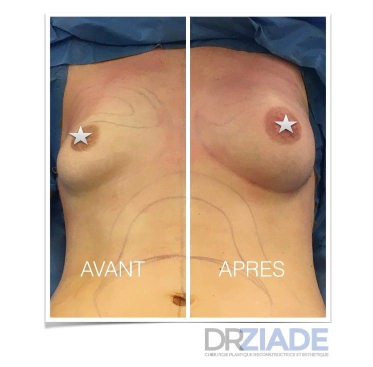 Augmenter le volume de ses seins sans prothèse