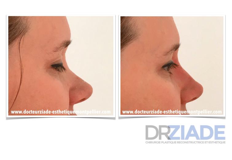 Changer la forme de son nez sans chirurgie - Acide hyaluronique montpellier