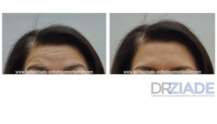 Botox par le Dr ZIADE Chirurgien Esthétique à Montpellier