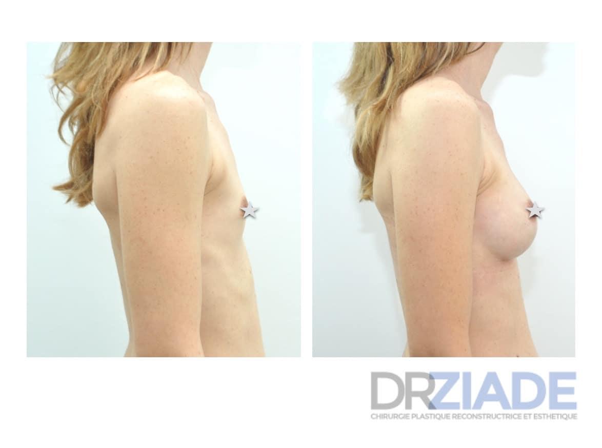 Augmenter le volume de ses seins par prothèse
