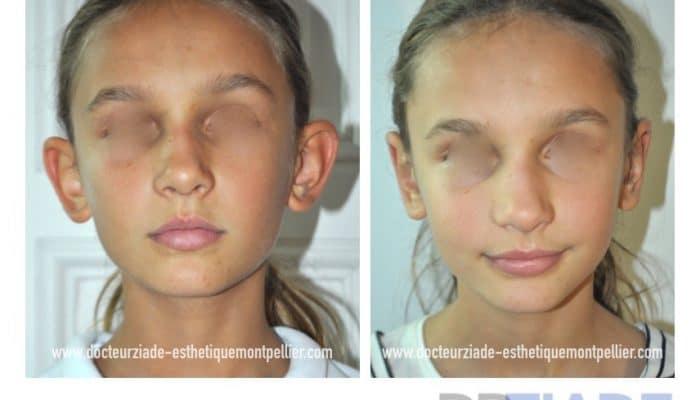 Correction des oreilles décollées par le Dr ZIADE- Chirurgien esthétique à Montpellier