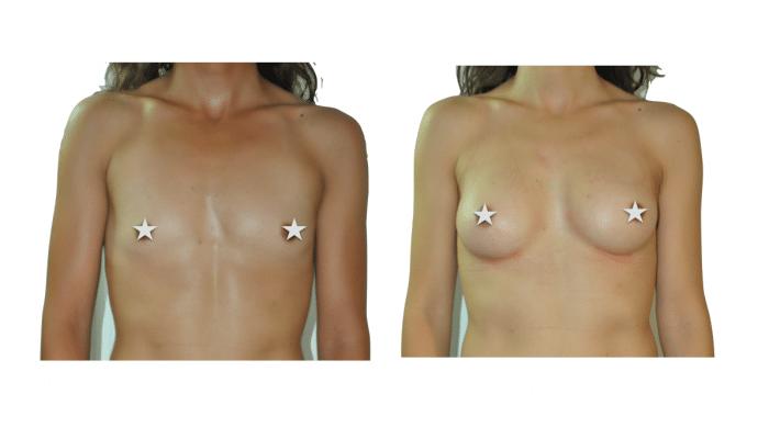 Chirurgien esthétique et plastique à Montpellier