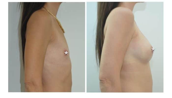 Augmentaion mammaire par le Dr ZIADE Montpellier