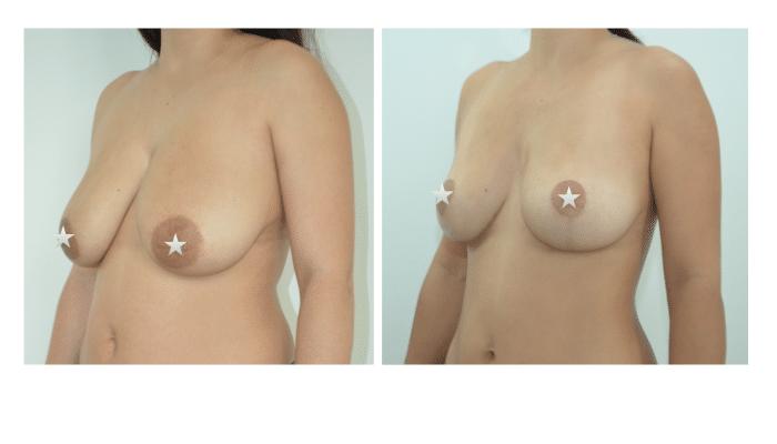 Lifting des seins par le Dr ZIADE à Montpellier