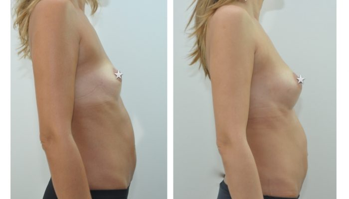 Lipofilling des seins par le Dr ZIADE à Montpellier