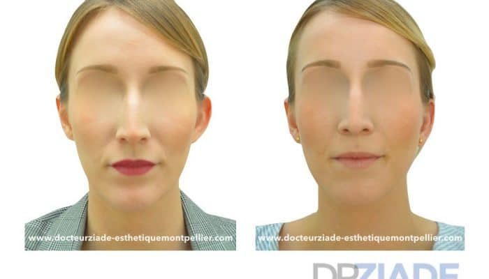 Correction des oreilles décollées par le Dr ZIADE, Chirurgien esthétique à Montpellier