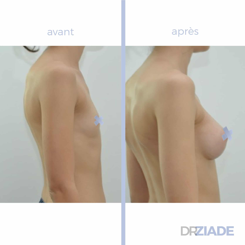 augmentation mammaire par prothèse ergonomique