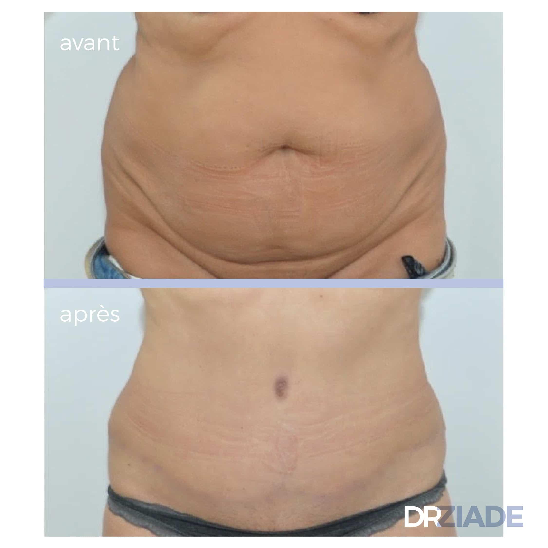 Résultat d'une abdominoplastie à 6 mois