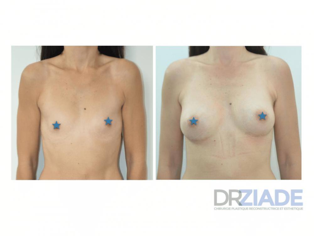 augmentation mammaire montpellier