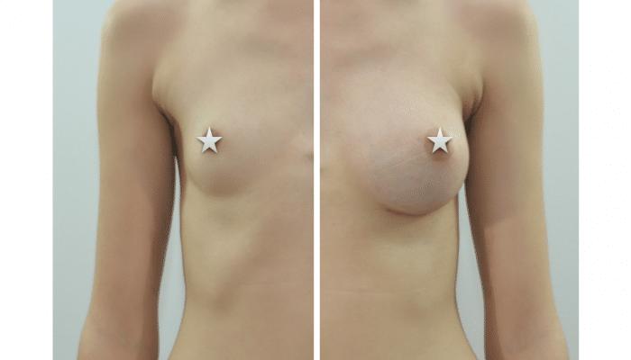 Augmentation mammaire par prothèses ergonomiques à Montpellier
