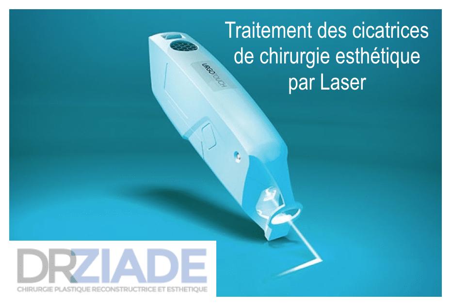 Chirurgie plastique Laser Montpellier