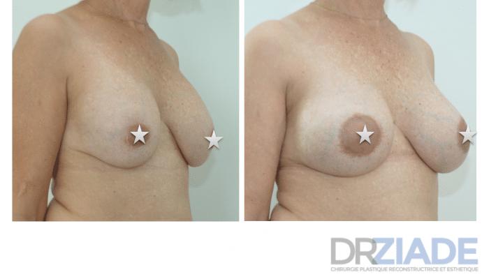 Changement d'implants mammaires à 10 ans