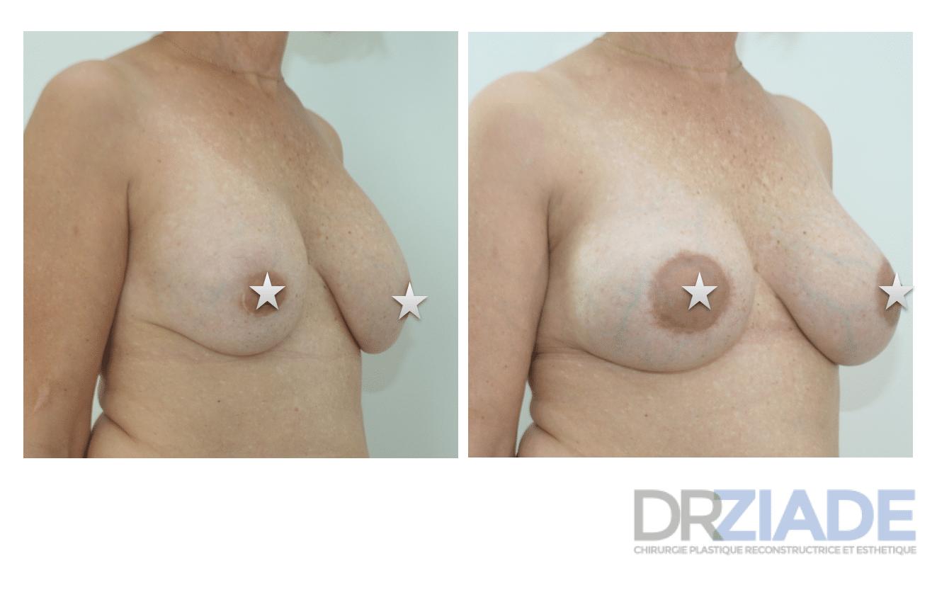 changement de prothèses mammaire