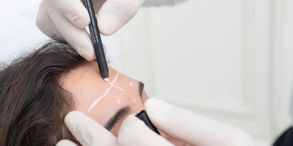 préparation d'un patient avant chirurgie plastique et esthétique